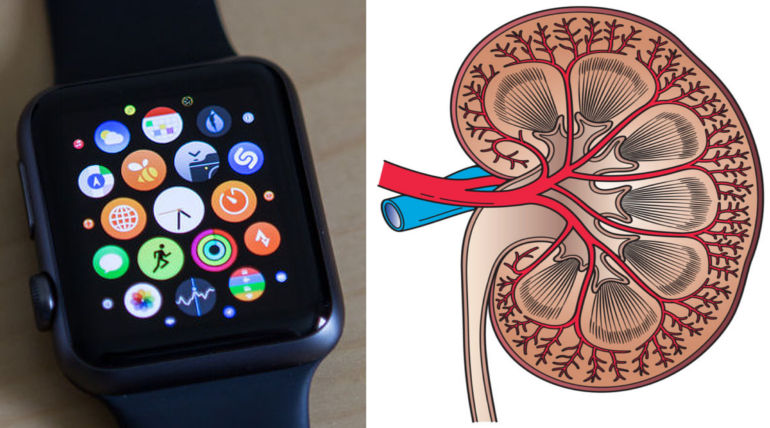 Apple Watch Warned Kidney Failure Of Florida Girl Saving Her Life