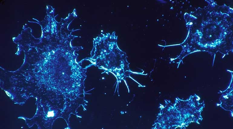 Chemotherapy via Nanotubes, A targeted way to Kill Cancer